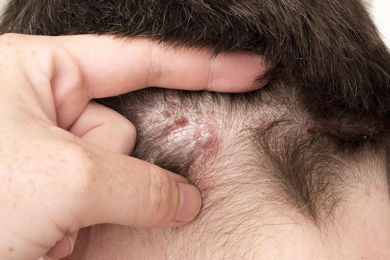 Eczema | Capilia solutions