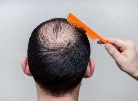 Photo article de blogue Calvitie homme | Photo blog article Men Baldness