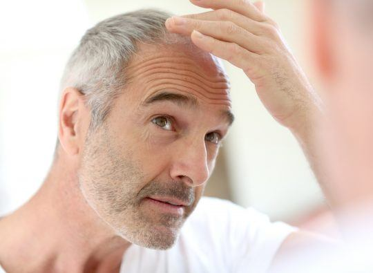 Senior man and hair loss issue (perte de cheveux, calvitie)