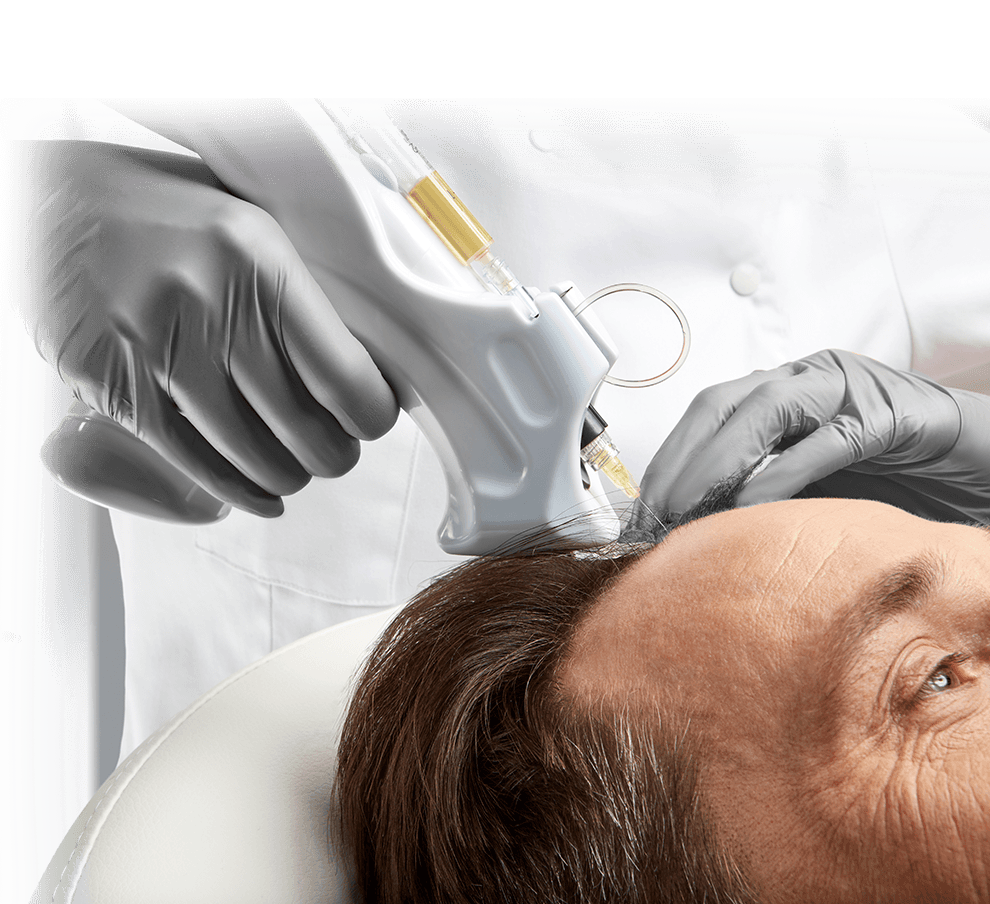 Traitement PRP | PRP Treatment | Capilia carrousel